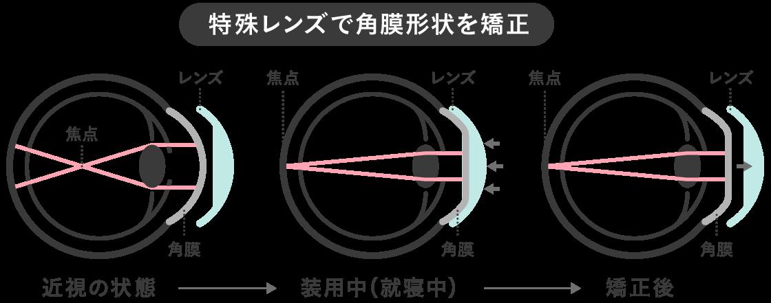 眼球イメージ